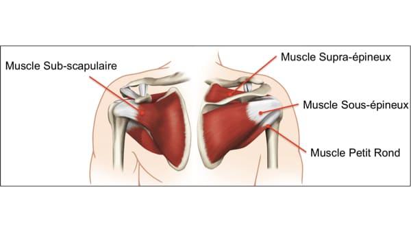 anatomie rupture du tendon subscapulaire epaule rupture tendon sous scapulaire traitement pathologies epaule chirurgien orthopedique paris chirurgien de l epaule chirurgien du coude