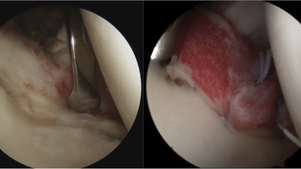 chirurgie bourrelet epaule lesion bankart epaule chirurgien orthopedique paris chirurgien de l epaule chirurgien du coude