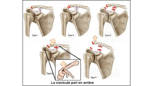 disjonction acromio claviculaire entorse acromio claviculaire traitement luxation acromio claviculaire reeducation epaule chirurgien orthopedique paris chirurgien de l epaule chirurgien du coude