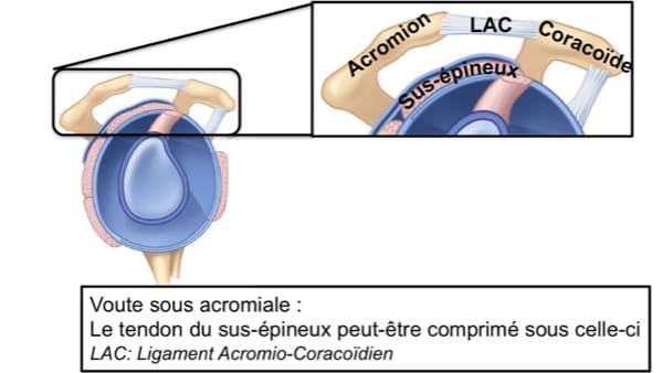 espace sous acromial conflit sous acromial reeducation conflit sous acromial operation epaule chirurgien orthopedique paris chirurgien de l epaule chirurgien du coude