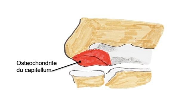 osteochondrite coude panner coude epaule chirurgien orthopedique paris chirurgien epaule chirurgien coude