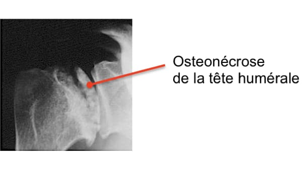 osteonecrose aseptique osteonecrose epaule symptomes osteochondrite epaule chirurgien orthopedique paris chirurgien epaule chirurgien coude