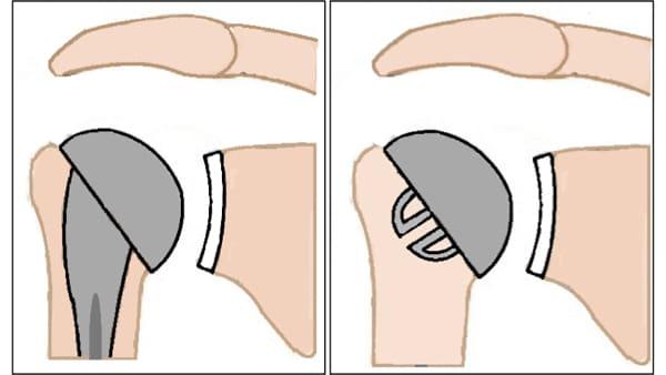 prothese d epaule inversee prothese epaule inversee prothese totale epaule prothese de l epaule reeducation epaule chirurgien orthopedique paris chirurgien de l epaule chirurgien du coude