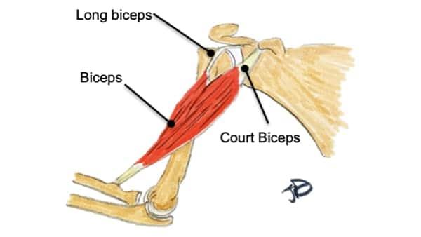 rupture du biceps au coude douleur biceps coude anatomie biceps brachial coude epaule chirurgien orthopedique paris chirurgien epaule chirurgien coude