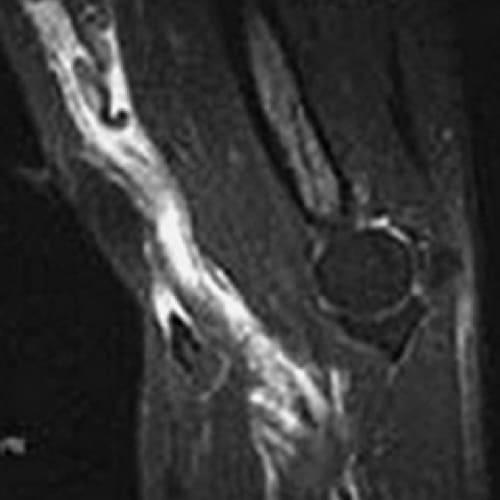 rupture du biceps au coude douleur biceps coude irm coude epaule chirurgien orthopedique paris chirurgien de l epaule chirurgien du coude