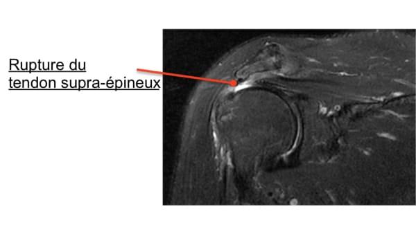 rupture supra epineux rupture de la coiffe des rotateurs symptomes rupture de la coiffe des rotateurs causes epaule chirurgien orthopedique paris chirurgien epaule chirurgien coude 1