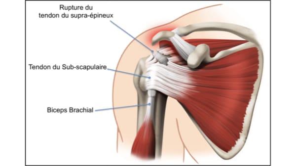 rupture supra epineux rupture de la coiffe des rotateurs symptomes rupture de la coiffe des rotateurs causes epaule chirurgien orthopedique paris chirurgien epaule chirurgien coude
