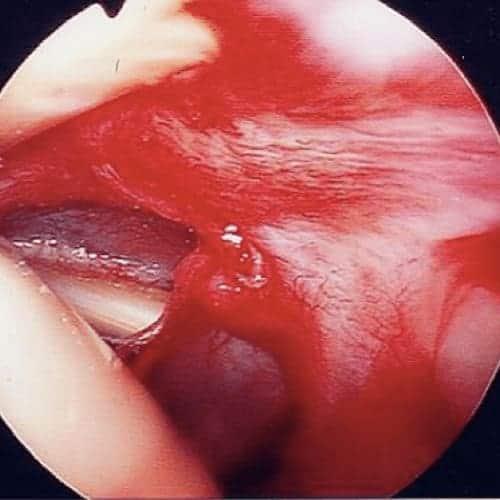 synovite epaule arthroscopie synovite epaule une synovite de l epaule synovite traitement epaule chirurgien orthopedique paris chirurgien epaule chirurgien coude