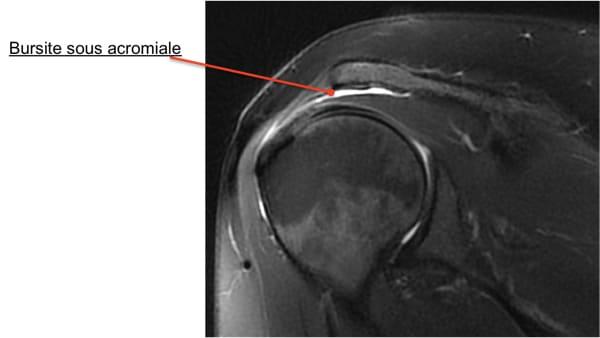 tendinite supra epineux bursite conflit sous acromial causes conflit sous acromial test epaule chirurgien orthopedique paris chirurgien epaule chirurgien coude